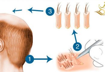 Popular questions about hair transplantation