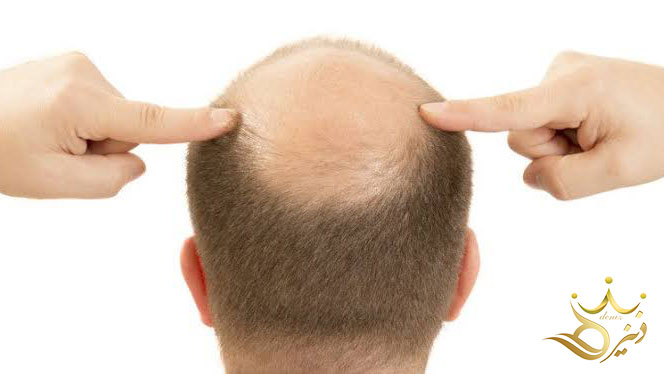 Care and things you should know after hair transplantation